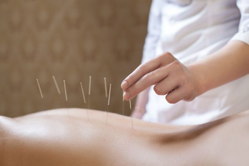 Acupuncture for Stress and Depression? Yes, Please ...